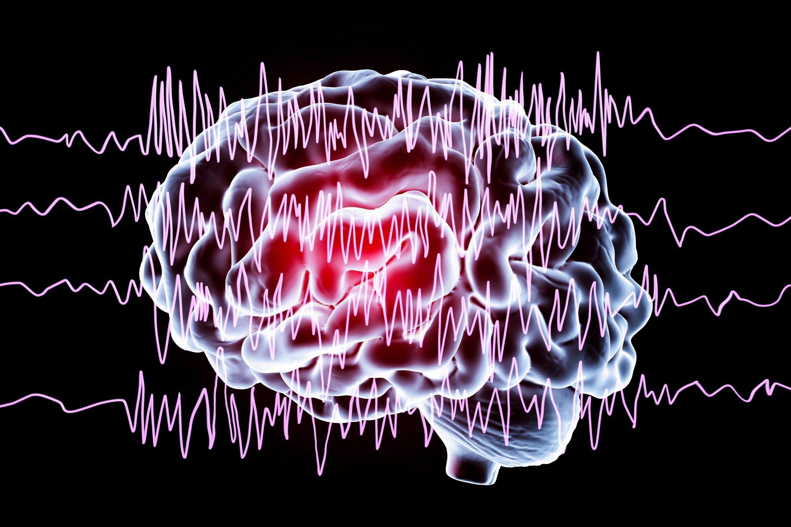 capture seizure by turning brainwaves into sound